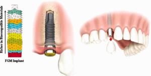 Functional Gradient Material (FGM)