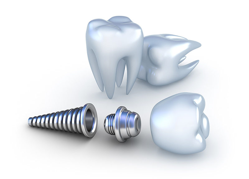 applications of titanium in dental implants