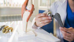 Orthopedic Implant